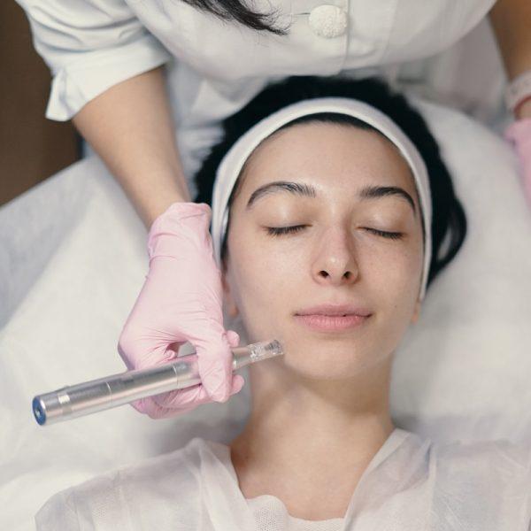micrpneedling facial esthetiklab